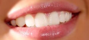 dentures-new-braunfels-tx