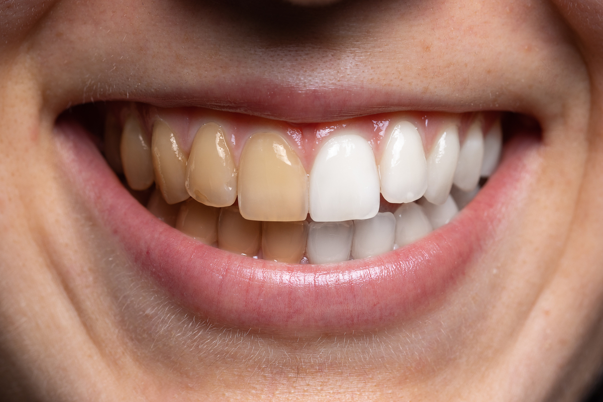 The Most Common Questions about Tooth Staining Answered