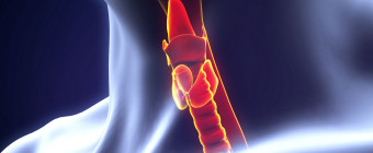 Hypothyroidism Signs & Surgical Treatments