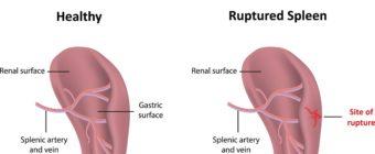 Ruptured Spleen