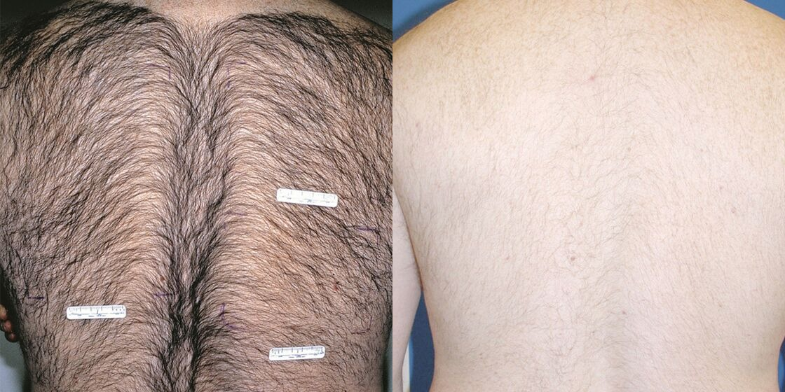 Before & After ICON Hair Removal