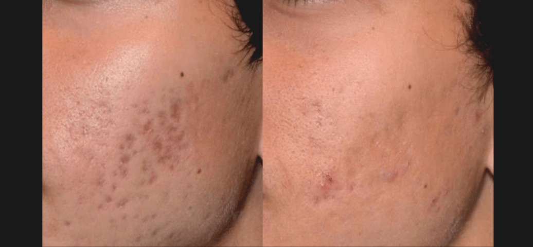 PicoSure Skin Before & After 1