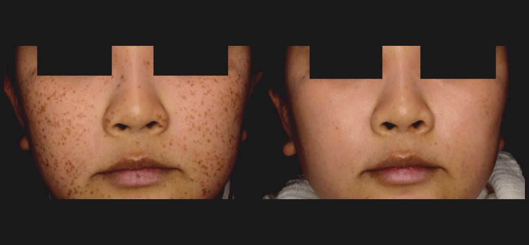 PicoSure Skin Before & After 2