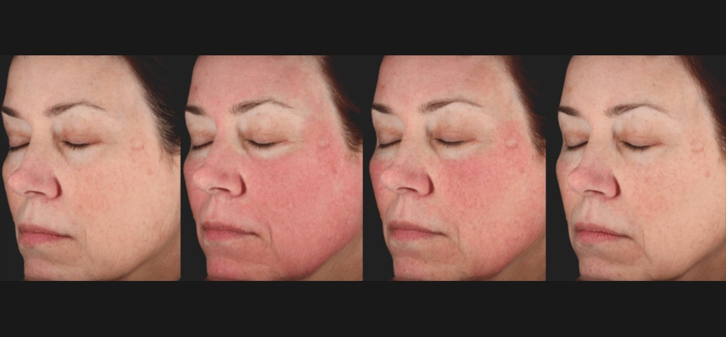 PicoSure Skin Before & After 3