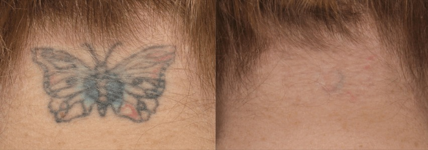 PicoSure Tattoo Before & After 1