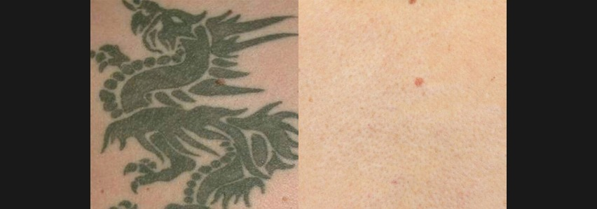 PicoSure Tattoo Before & After 2