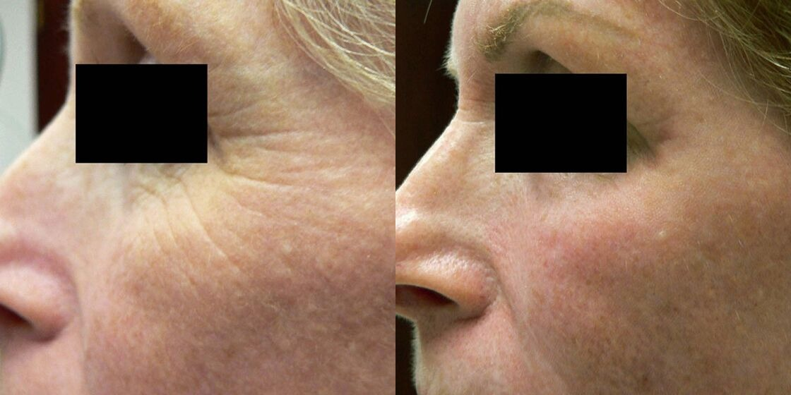 Before After ICON Wrinkle Reduction