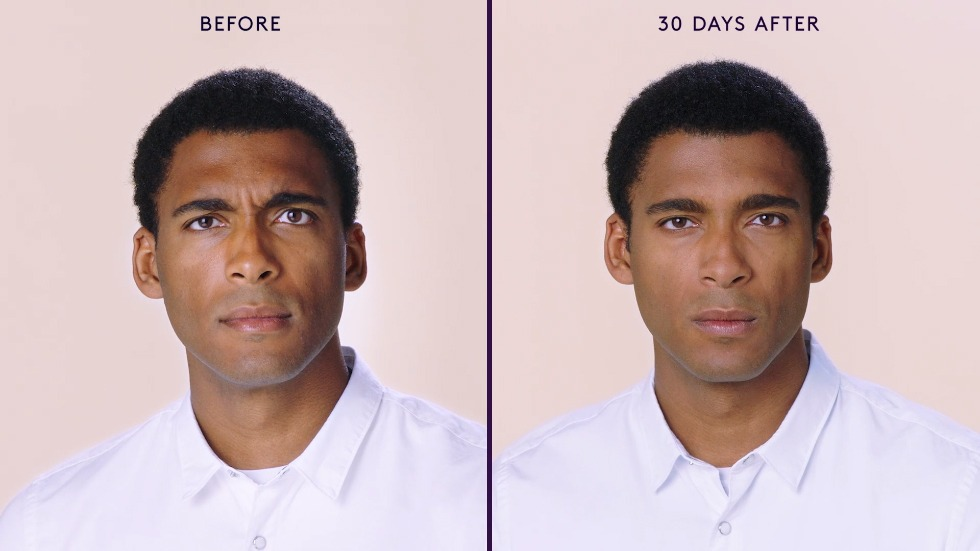 Jason Frown Lines Before & After Botox