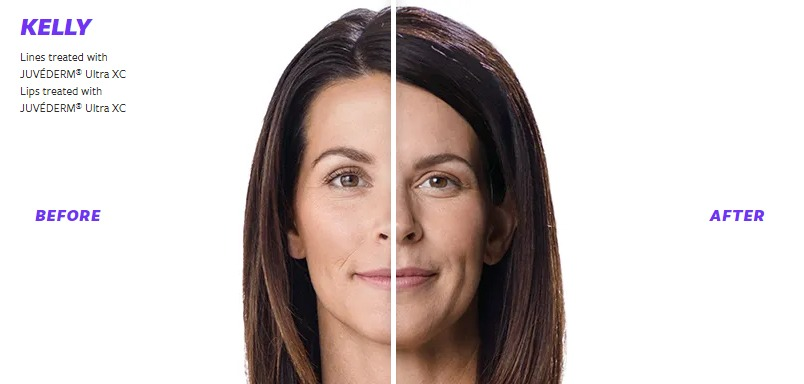 Juvederm Before & After 2