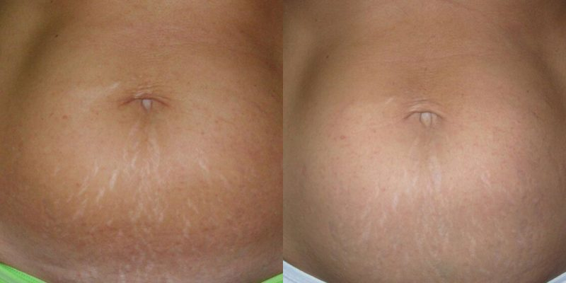 ICON Before & After Stretch Marks