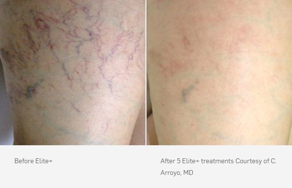 Laser Vein Removal Before and After, 5 Elite+ treatments