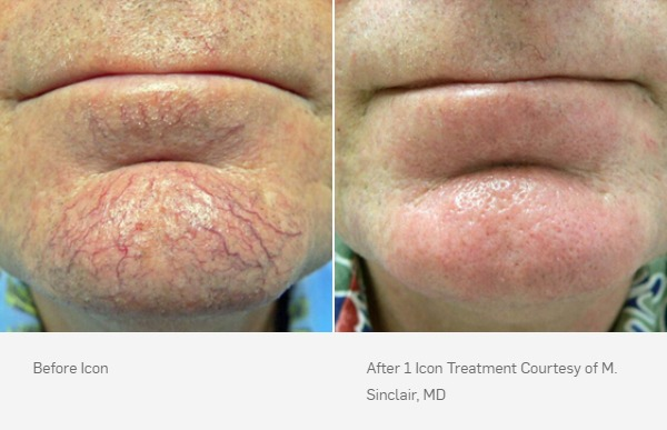 Laser Vein Removal Before and After, 1 ICON treatment