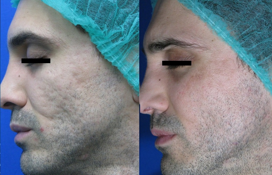 Tetra Co2 CoolPeel Acne before and after