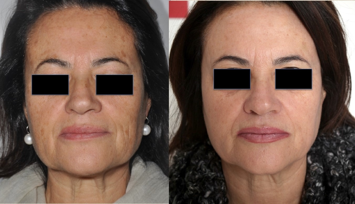 Tetra Co2 CoolPeel before and after Face