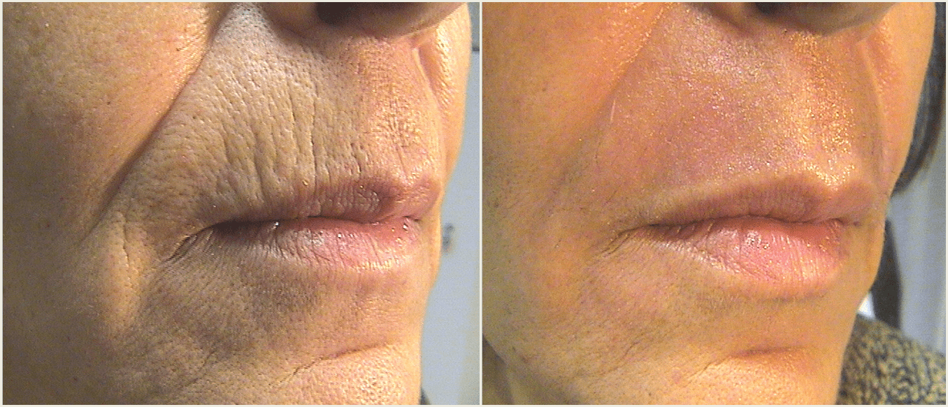 Tetra Co2 CoolPeel Results