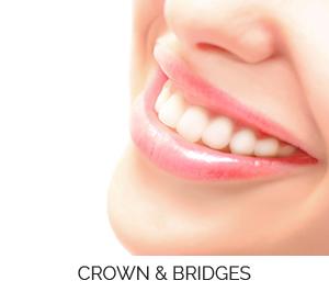 Crowns and Bridges