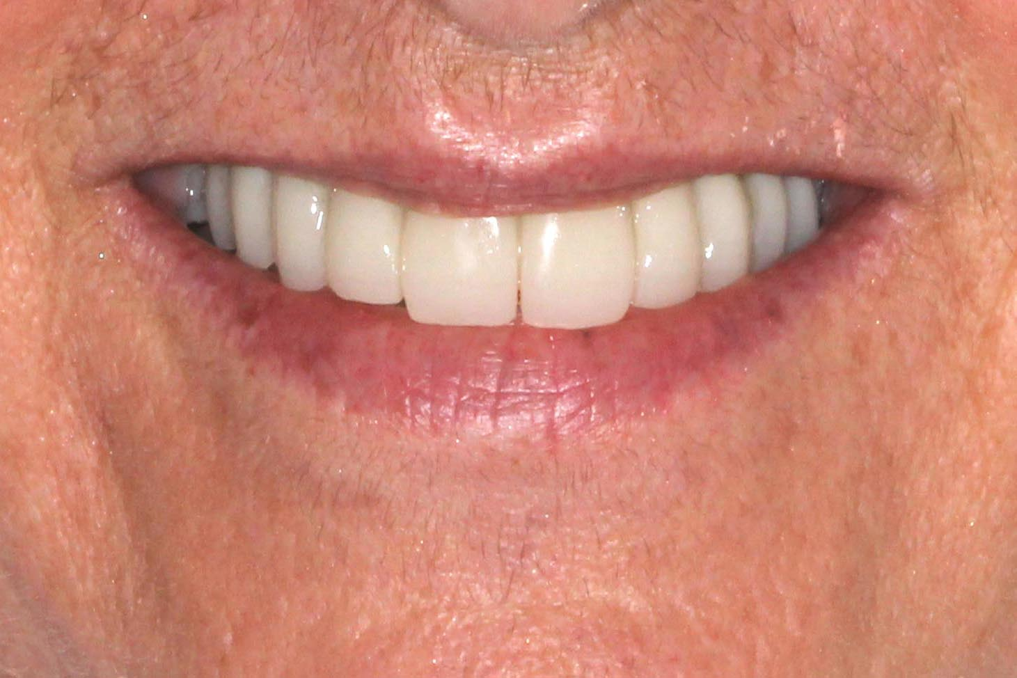A full mouth rehabilitation after