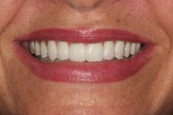 After re-restoration of implants and teeth