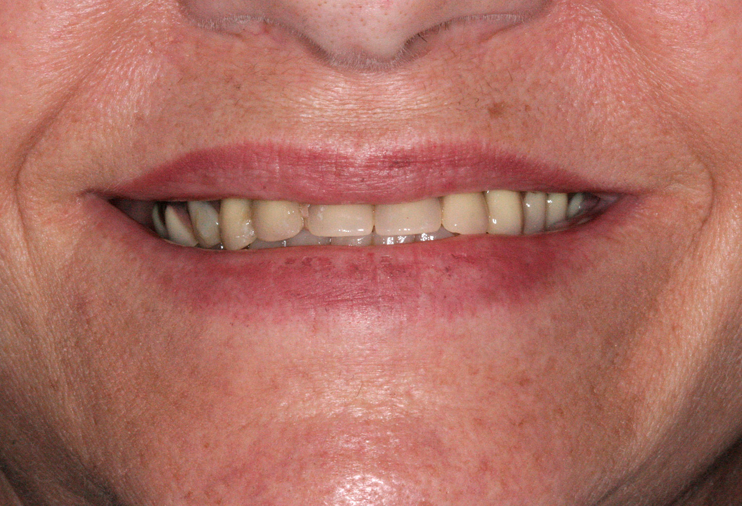 Before re-restoration of implants and teeth