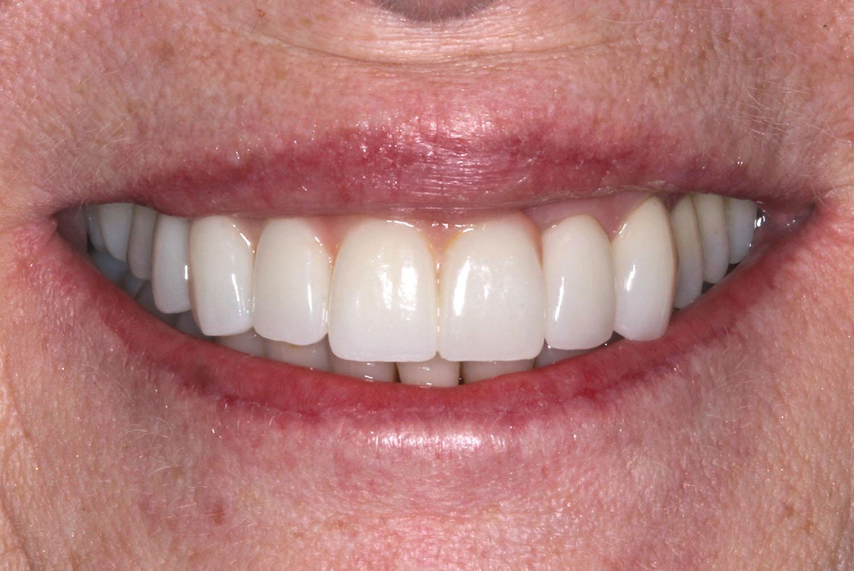 After applying orthodontics and restoration