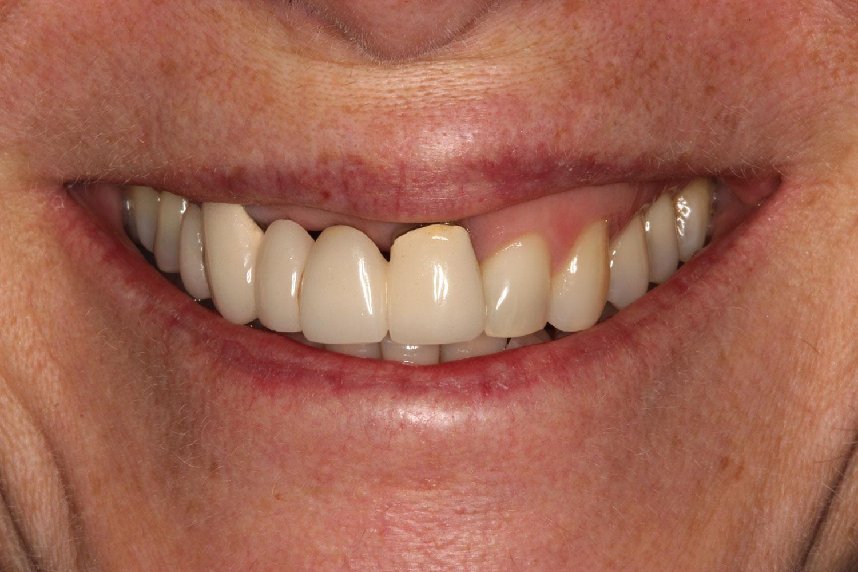 Before applying orthodontics and restoration
