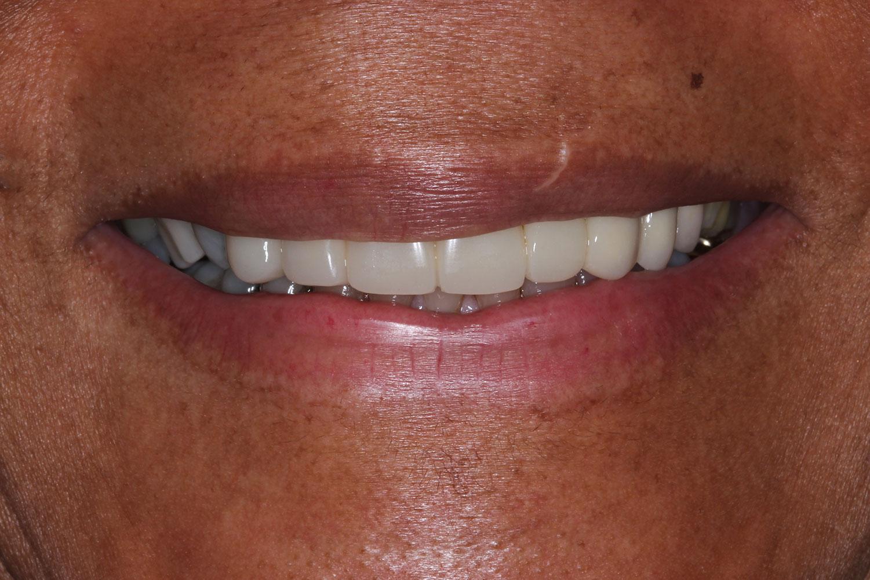 Teeth with applied orthodontics