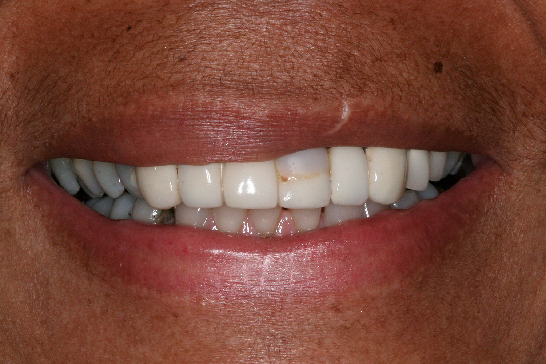 Teeth needing orthodontics