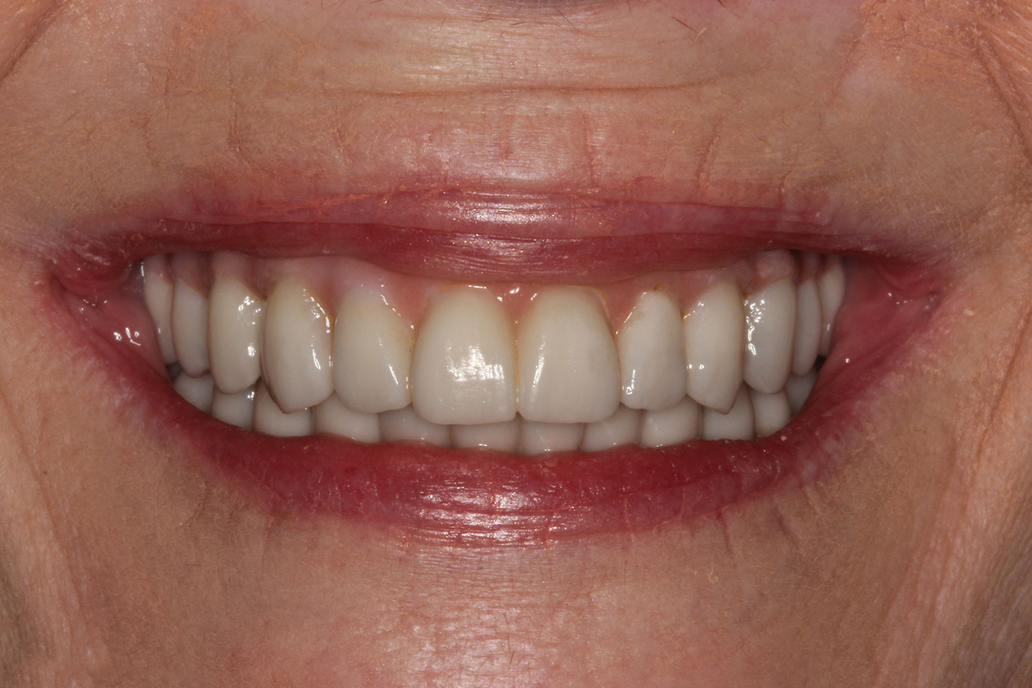 Restored implant and teeth