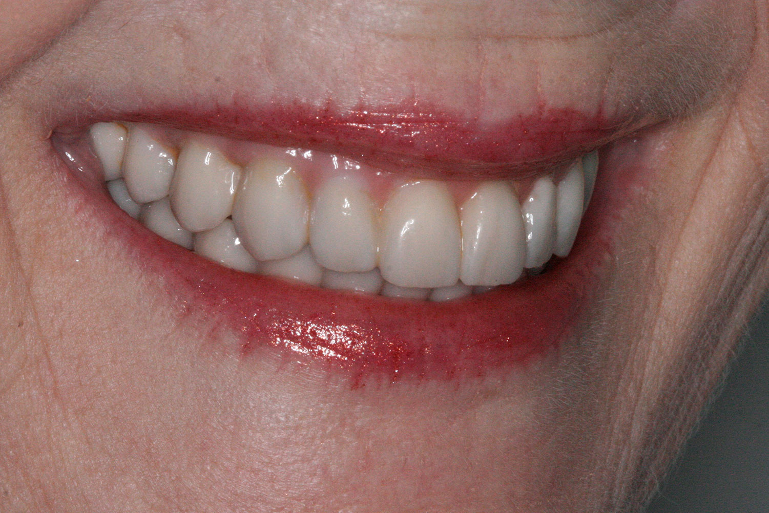A partially side view of restored implant and teeth