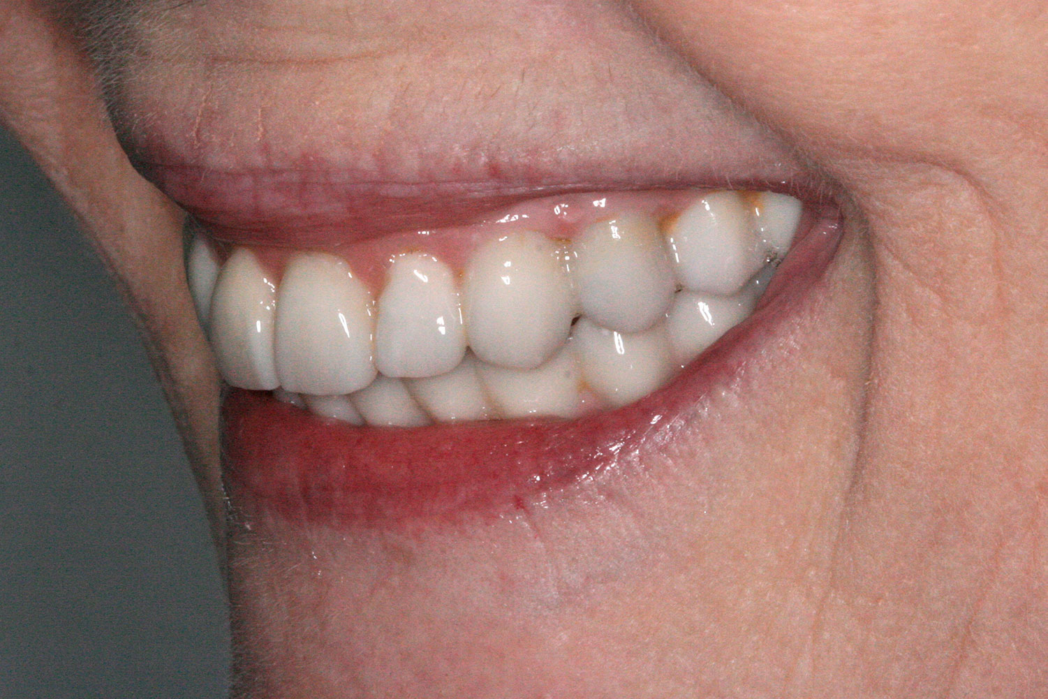 A side view of the restored implant and teeth