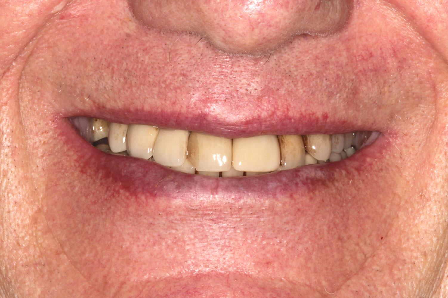 Restoring yellowish teeth