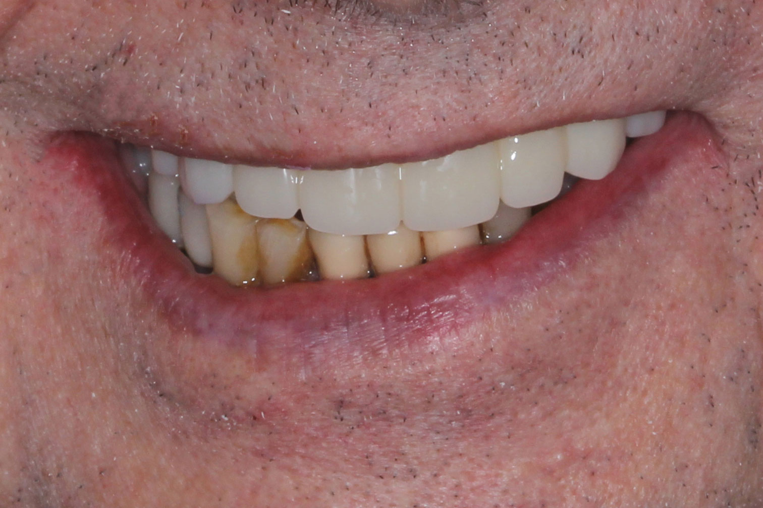 Restored implants for the teeth