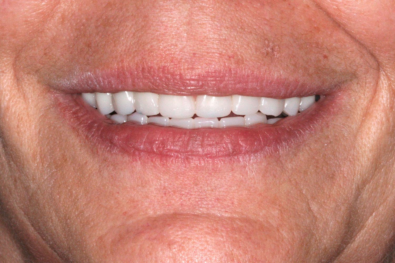After the implant restoration procedure