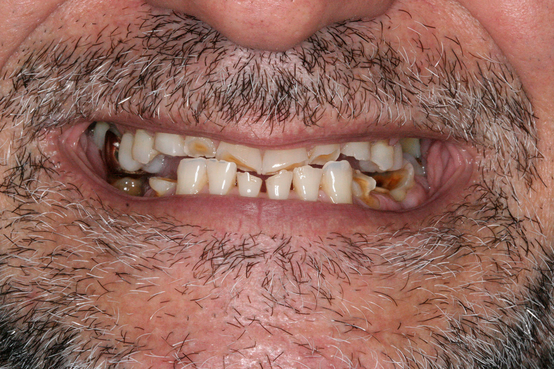 Teeth needing to restore ceramic implants