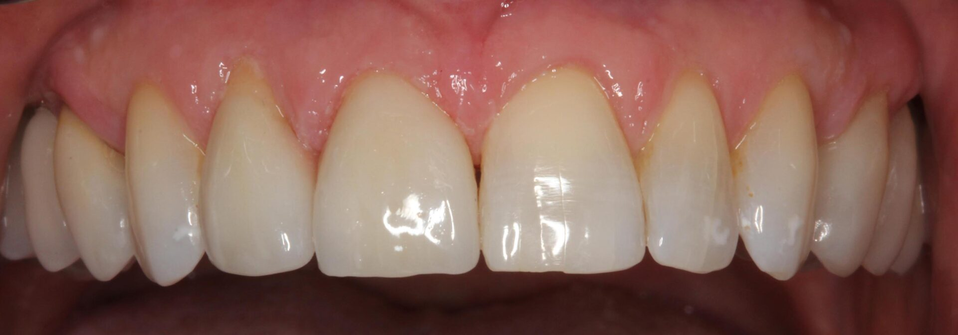 Tooth and crown ceramic restorations