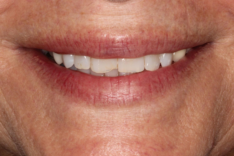 Teeth needing veneers