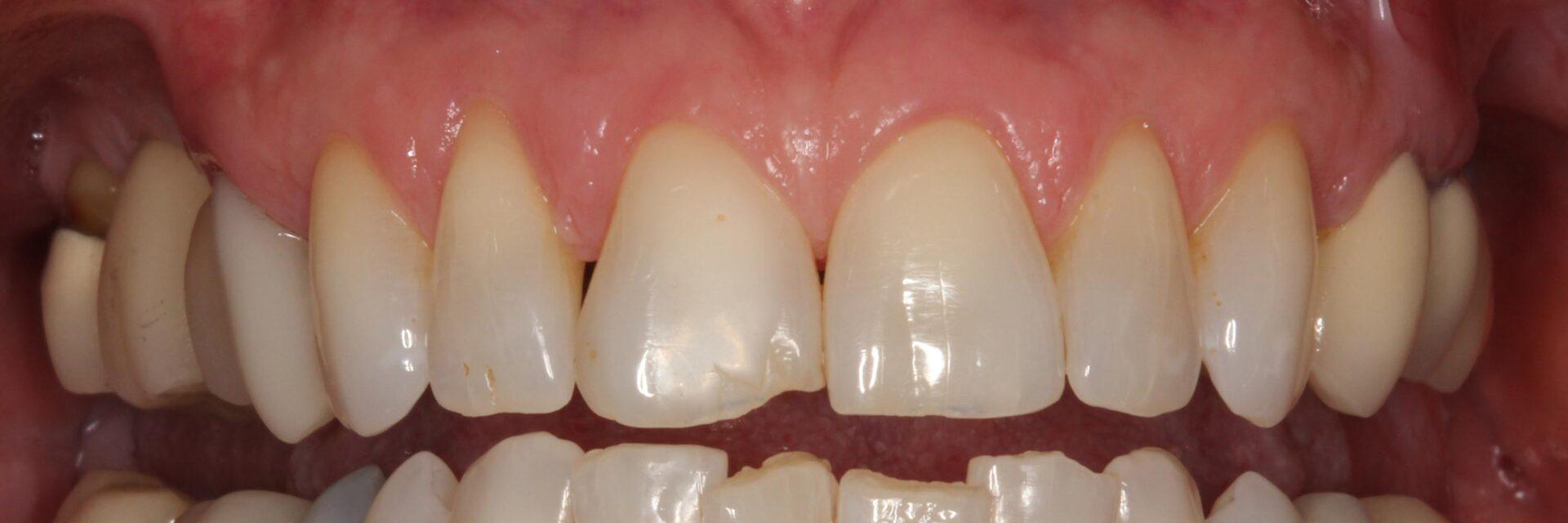 Teeth that needs crown restorations