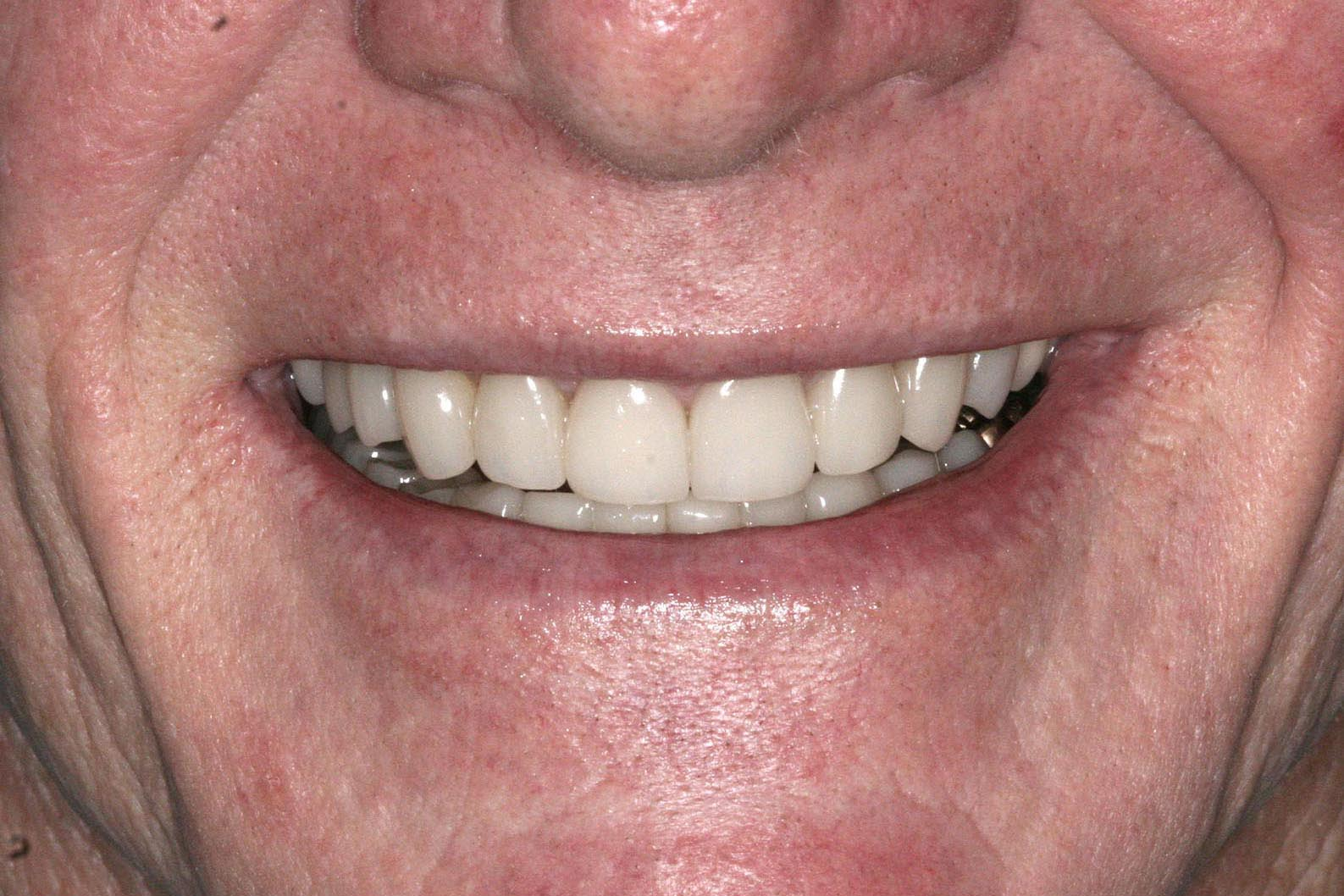 After adding crowns onlays and veneers