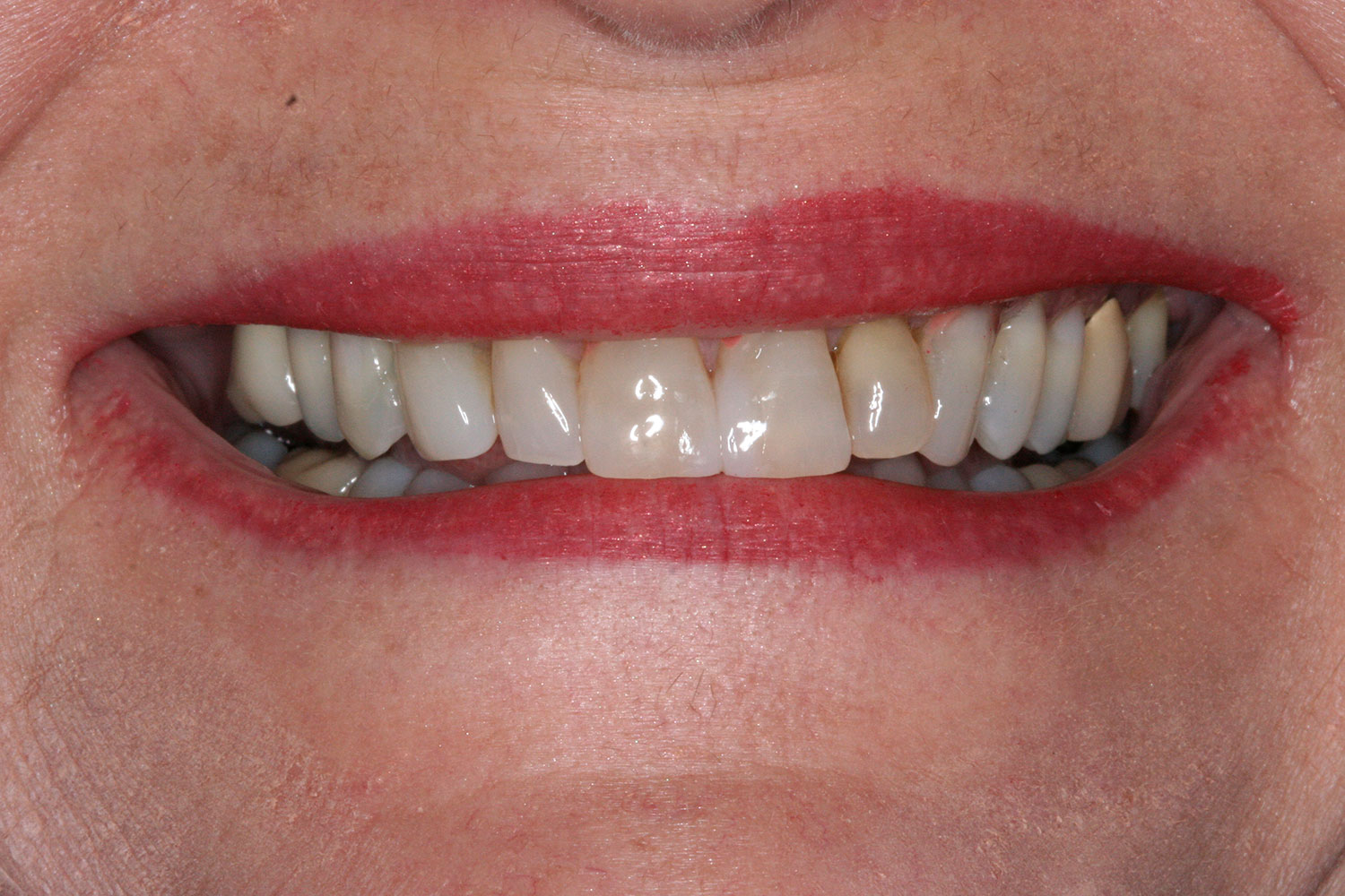After reshaping teeth