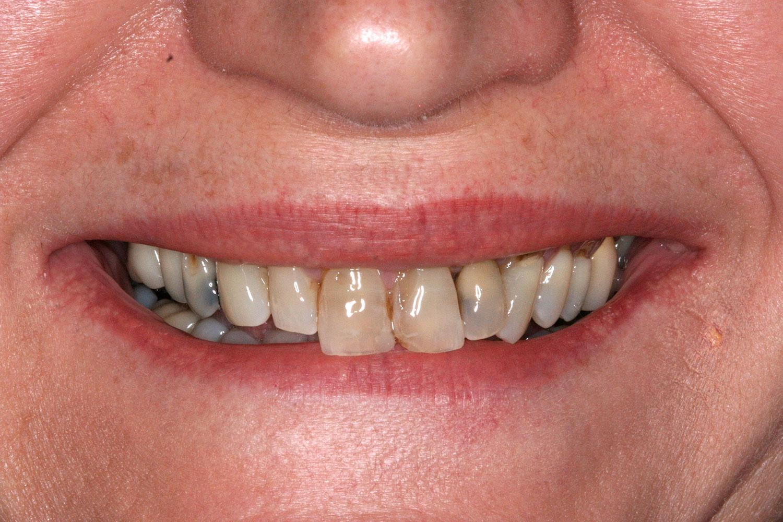 Teeth that needs reshaping