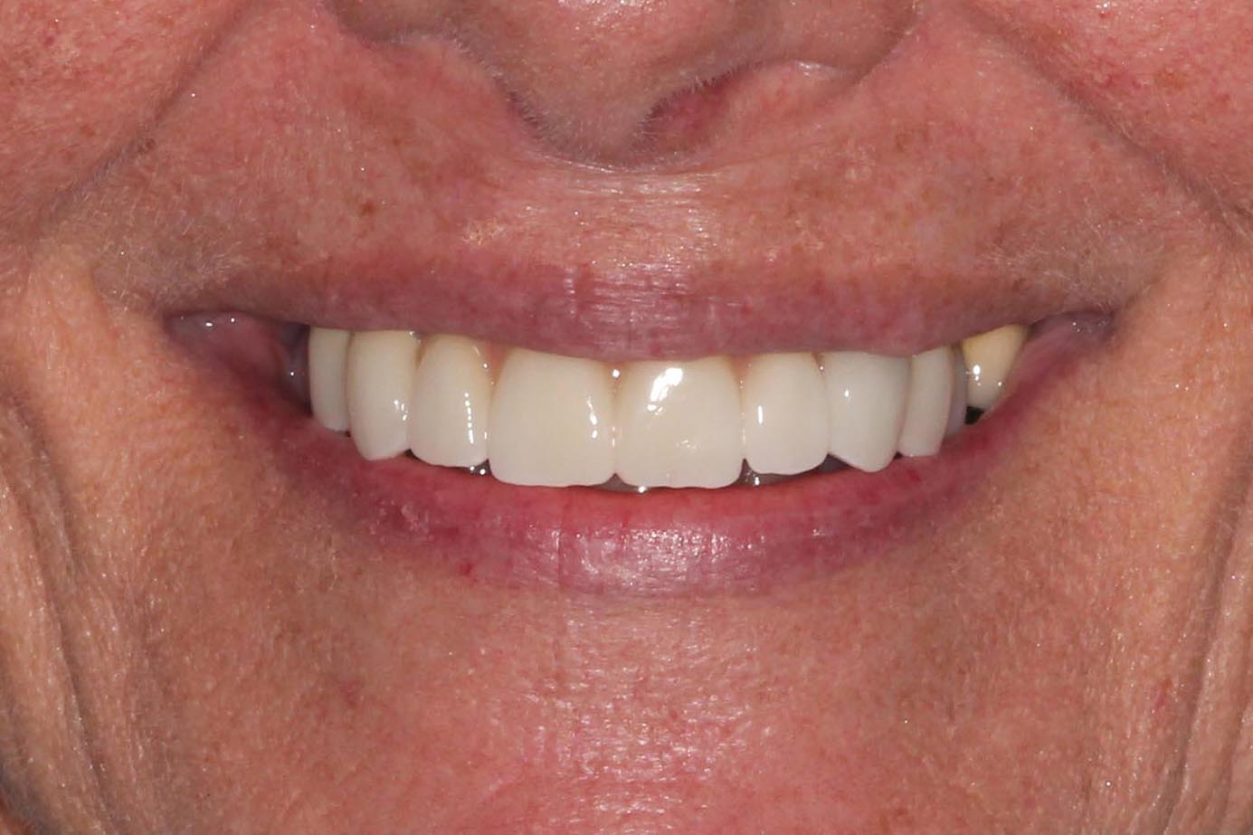 Applied limited care, esthetics to teeth