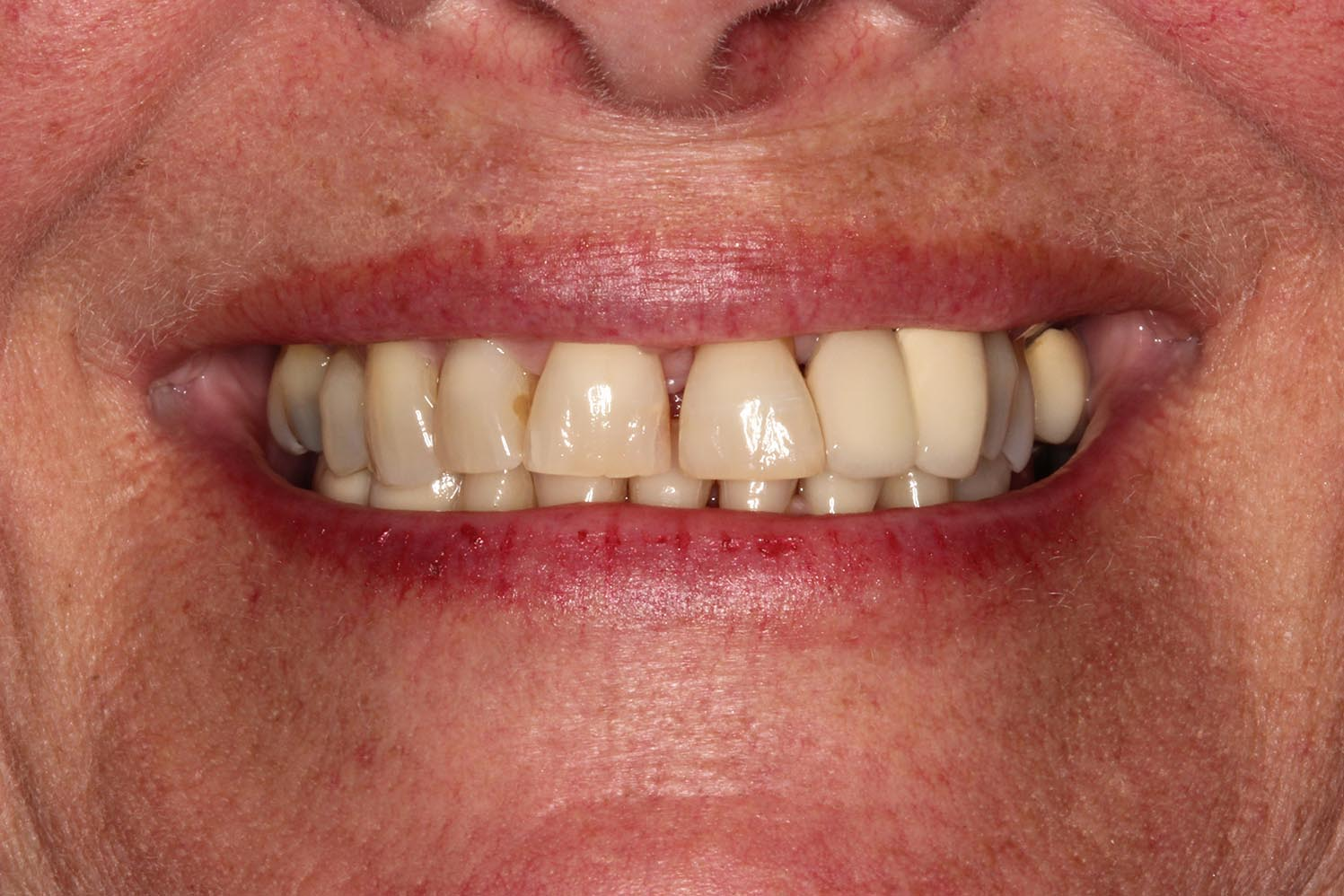 Teeth with no limited care, esthetics