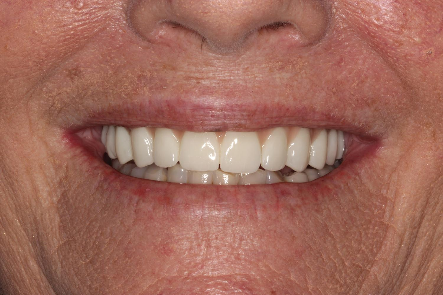 After adding limited implants and restorations