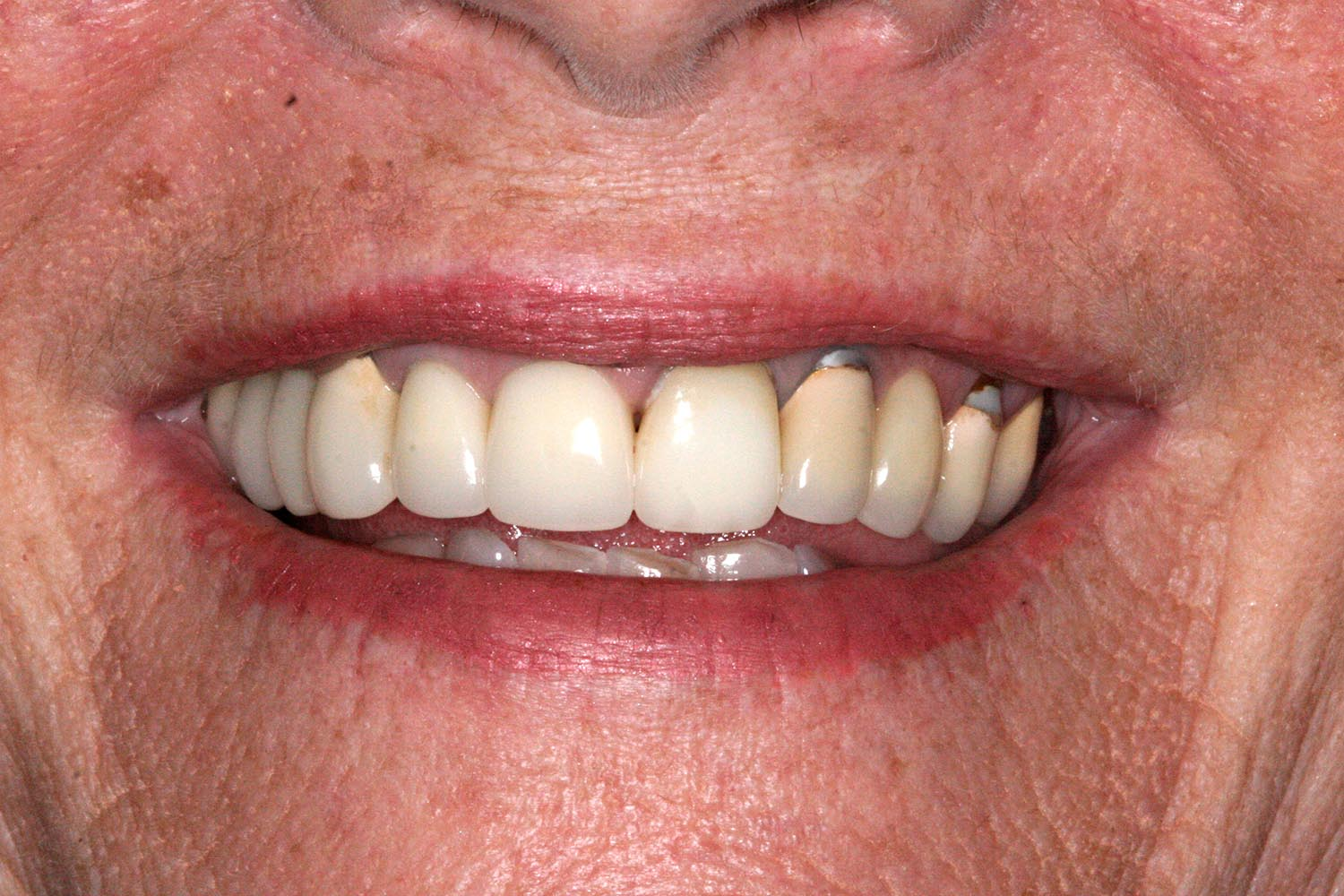 Before adding limited implants and restorations