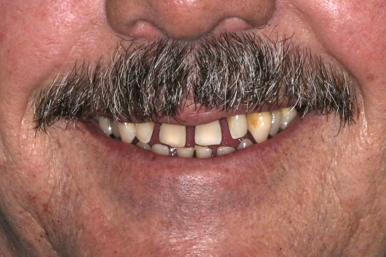 A set of teeth for a mixed full mouth rehabilitation