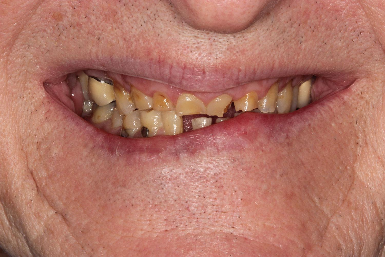 Teeth needing ceramic restorations