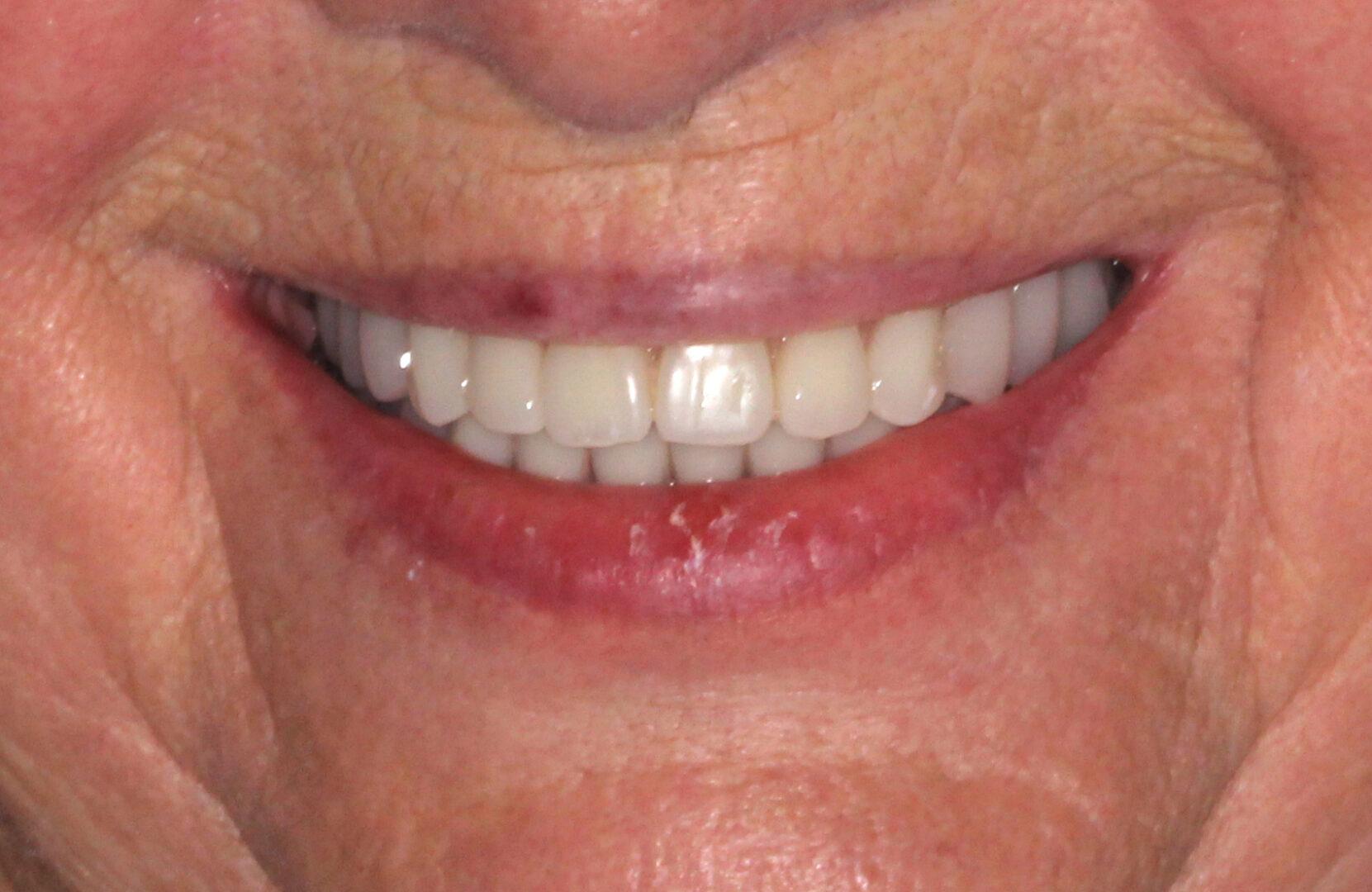 After applying restorations and dentures