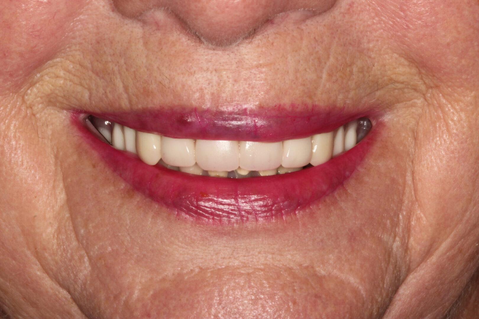 Teeth needing restorations and dentures