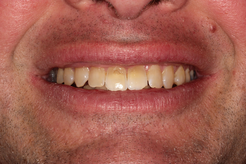 Teeth needing full restorations