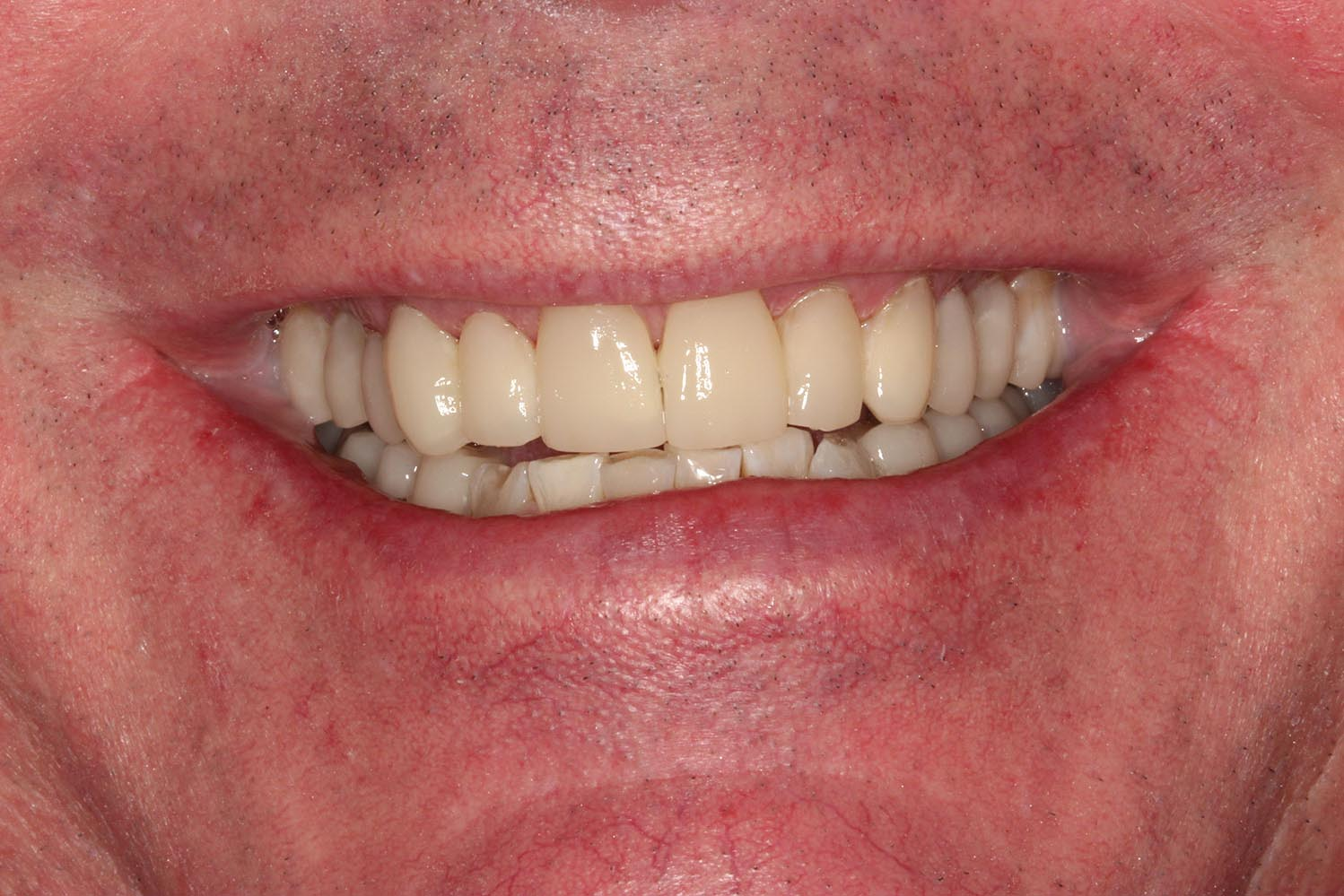 Partially restored teeth and orthodontics